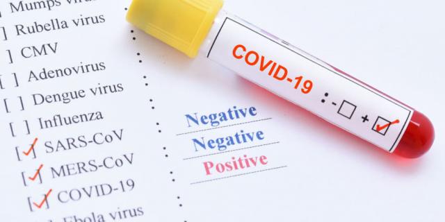 Lietuvos draudikų asociacija informuoja dėl koronaviruso pandemijos draudiminės rizikos